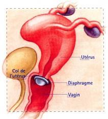 Diaphragme 1